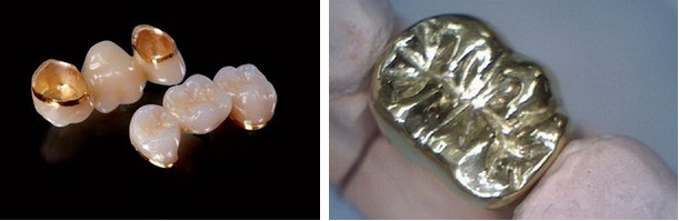 Loại răng giả cố định cầu răng sứ kim loại