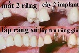 ảnh minh họa bệnh nhân mất 2 răng sau khi cắm implant