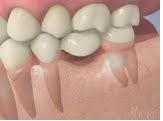 Cầu răng là gì