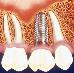 vật liệu cắm implant
