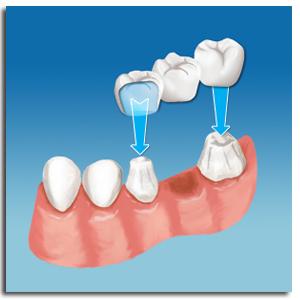 Cách làm cầu răng -răng giả cố định