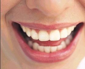 điều trị nội nha răng cửa
