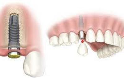 Ghép xương trong implant