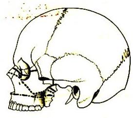 gãy xương hàm trên gây chấn thương