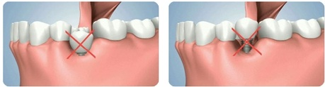 cấy ghép răng trường hợp tiêu xương