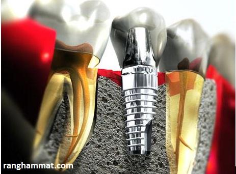 cấy ghép răng