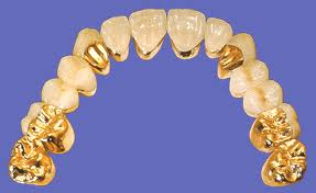 Phục hình răng giả cố định