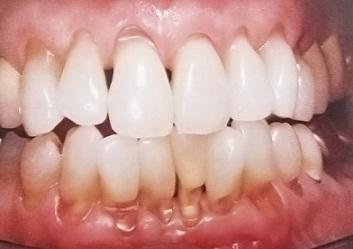 phục hồi thân răng, cổ răng
