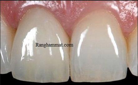 Làm răng sứ, răng sứ có những loại nào