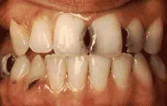 Sâu răng là gì, chản đoán sâu răng