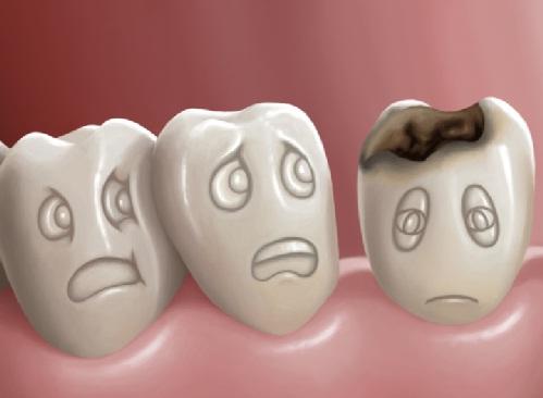 điều trị sâu ngà răng