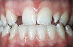 Các nguyên nhân làm răng chậm phát triển
