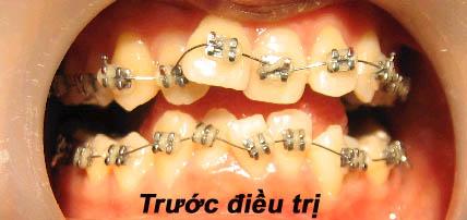 hình ảnh bệnh nhân trước khi nắn chỉnh răng