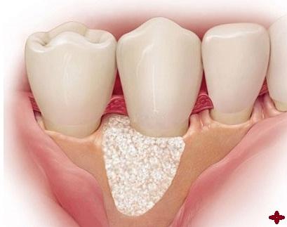 phục hình điều chỉnh xương ổ răng