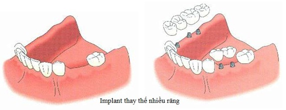 implant thay the nhiều răng