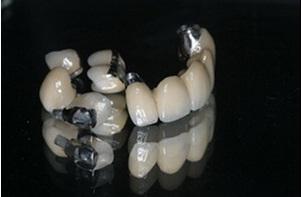 Răng sứ titan răng sứ phục hình trong răng giả cố định