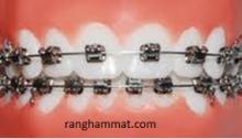 lớp nắn chỉnh răng
