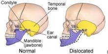 Biểu hiện lâm sàng ở sọ - cổ - mặt trong bệnh lý khớp hàm