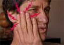 đau vùng mặt