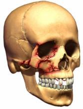 điều trị gãy xương gò má