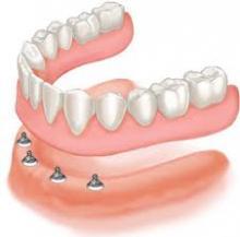 hàm giả tháo lắp trong cấy ghép răng