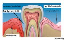 chản đoán bệnh viêm lợi quanh răng