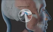 phẫu thuật loạn năng thái dương hàm
