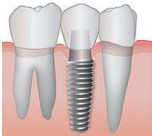 cấy ghép răng implan trường hợp mất