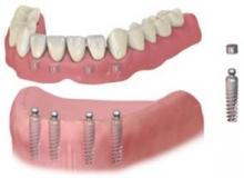cay ghep rang trường hợp mất răng toàn hàm