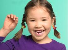 quy trình nhổ răng sữa răng thừa