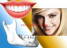 răng hàm mặt