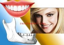 khuyết hổng chẽ chân răng