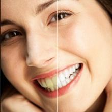 tẩy trắng răng tủy sống