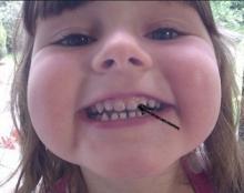 trẻ đổi màu răng