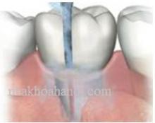 triệu chứng viêm quanh răng quanh implant