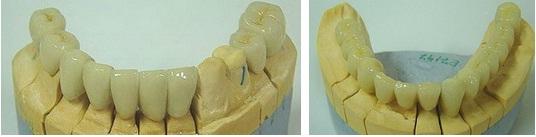 Loại Răng sứ Empress trong phục hình cố định