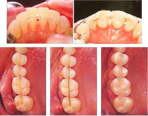 Cố định răng